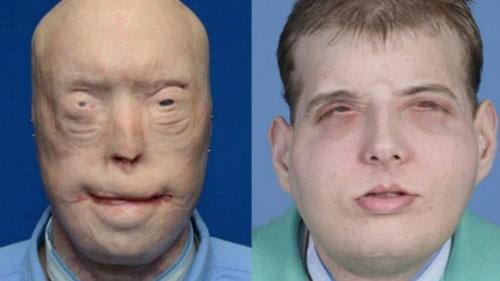 کاملترین و پرهزینهترین پیوند صورت جهان/ چطور یک آتشنشان با تغییر چهره به زندگی بازگشت؟