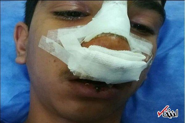مدیر مدرسه فاریابی جیرفت بازداشت شد / اقرار به شکستگی استخوان بینی و پارگی لب دانش آموز