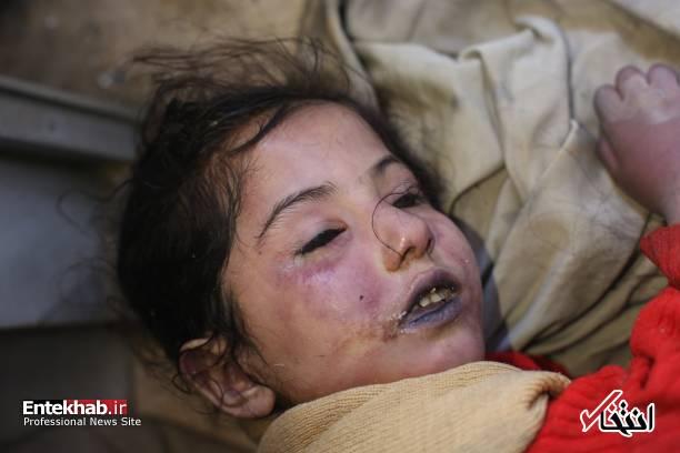 تصاویر دلخراش : کودکان قربانی اصلی حمله شیمیایی به دوما در غوطه شرقی دمشق