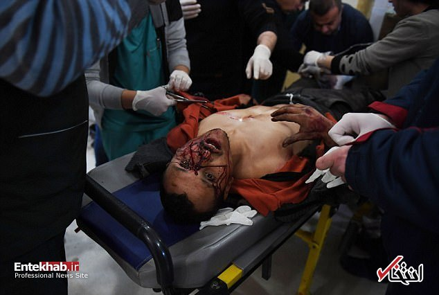 اتحاد های تلگرام تصاویر : آنچه بر مردم عفرین در حمله ارتش اردوغان گذشت
