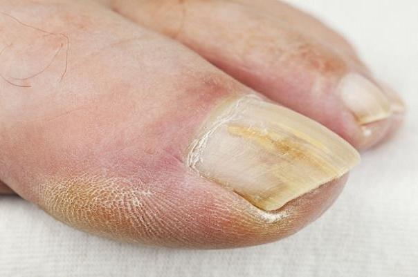 تغییرات ایجاد شده در ناخن ها را جدی بگیرید