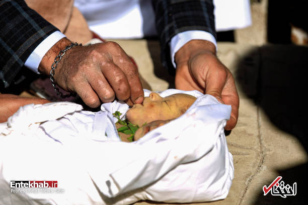 عکس/ دوقلوهای به هم چسبیده یمنی جان باختند