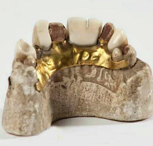 دندان مصنوعی طلایی ۲۷۰۰ ساله ای که آخرین صاحب آن یک پادشاه بود!