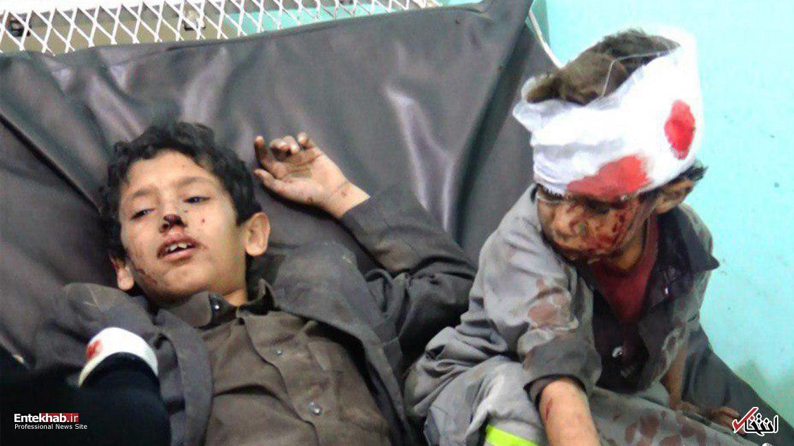 تصاویر : کودکان بازمانده از اتوبوس مرگ