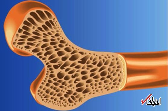 پیشگیری از پوکی استخوان با 4 روش ساده