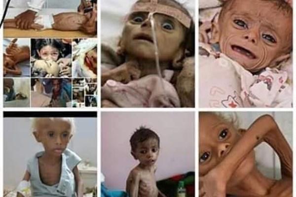 کودک 10 ساله؛ اولین قربانی قحطی بر اثر محاصره الحدیده یمن + عکس