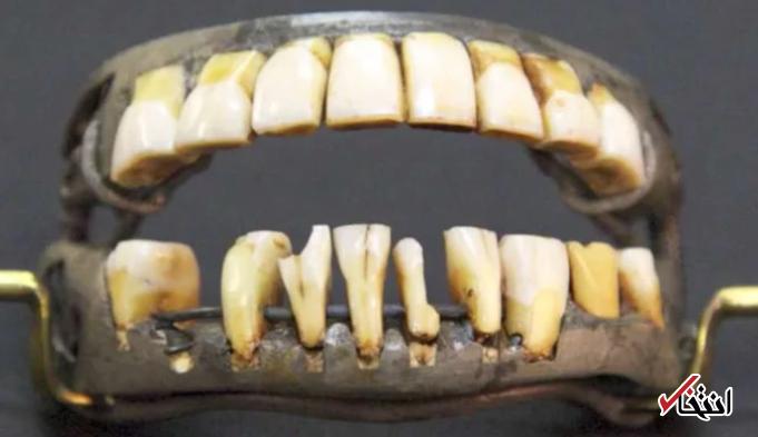 معروف ترین دندان های مصنوعی جهان در دهان جرج واشنگتن!