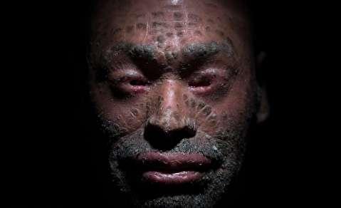 تصاویر روز : از مرد مبتلا به بیماری ایکتیوز تا دستگیری قمه کش فلاح