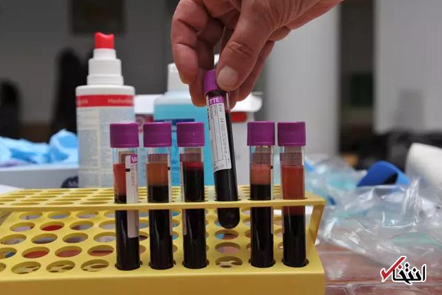 با این آزمایش خون پیش بینی کنید 10 سال بعد زنده اید یا خیر!
