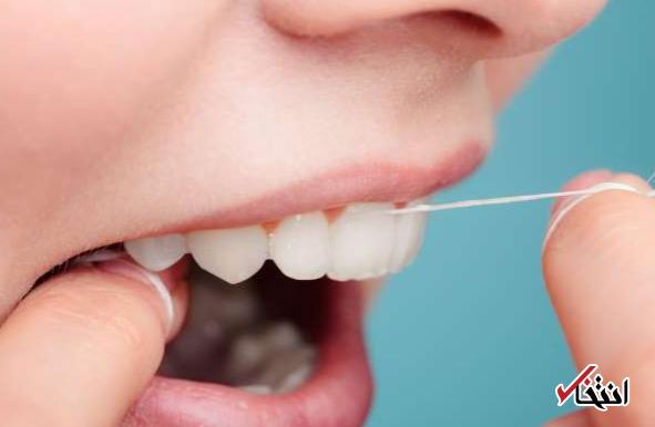 3 نکته مهم درباره نخ دندان / از یشگیری سکته مغزی تا سلامت قلب