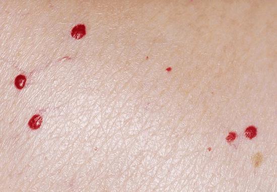 ۵ بیماری پوستی مرتبط با کرونا + تصاویر