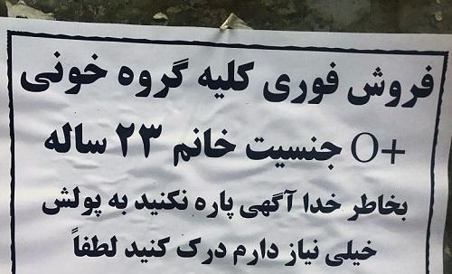 قیمت کلیه در ایران